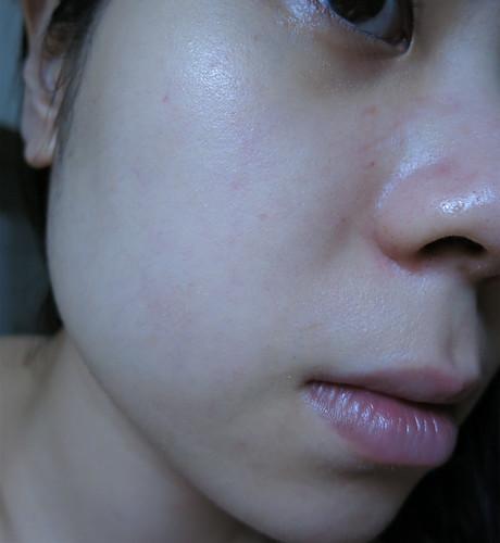 台中自然美大墩店-NB-1美御妍系列31敷臉後