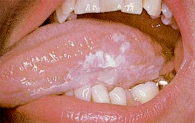 Oral-Cancer-9-400x254 | Flickr - Photo Sharing!Early Signs Of Oral Cancer Pictures