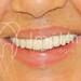 Prótese fixa metalocerâmica total do maxilar superior