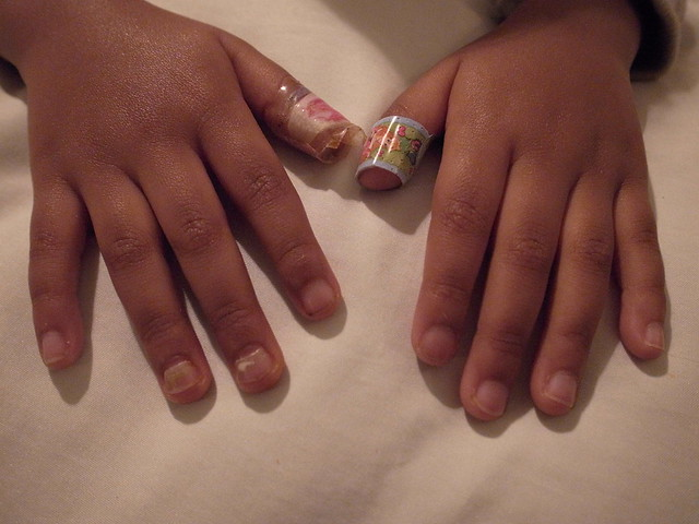Lily's nails. Caused by HFMD