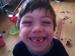赤ちゃんのときの虫歯予防によって生涯を通じて歯を丈夫にすることができる?