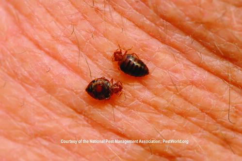 Things That Go Chomp In The Night Bedbugs Scabies And Fleas