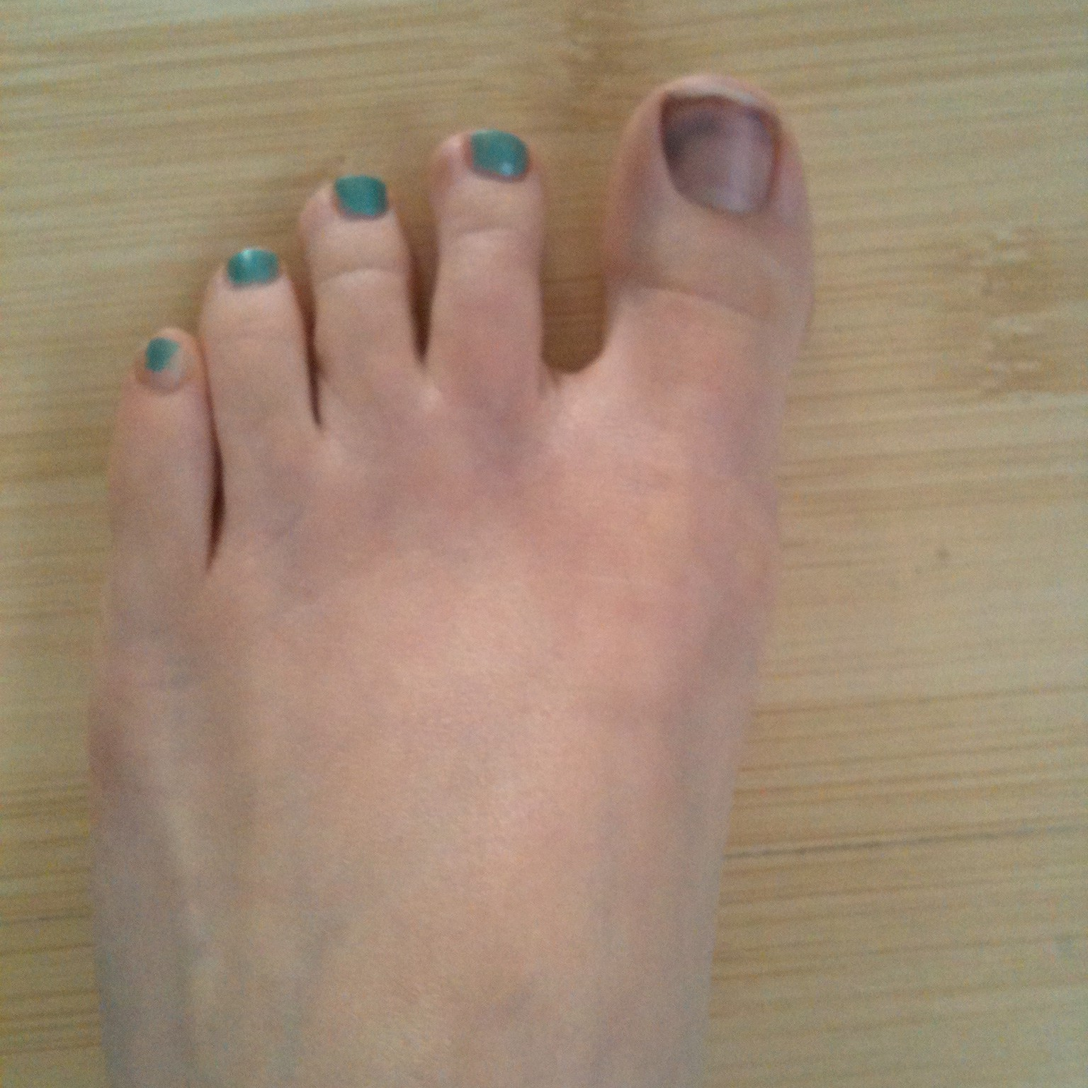 Bruise Under the Big Toenail Treatment - The Complete Guide!