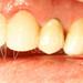 periodontia - retração gengival e exposição de gengiva escura em dente com coroa metalocerâmica