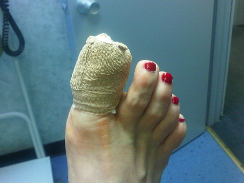 Had unexpected toe surgery today. Owie!