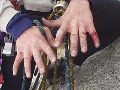 Mike's Hands after a hard days climbing Image