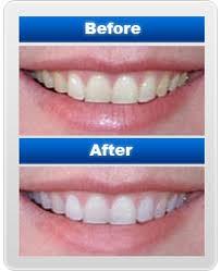 teethwhitening1