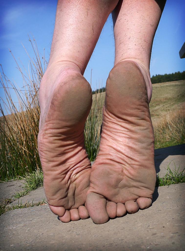 Wrinkled soles gallery