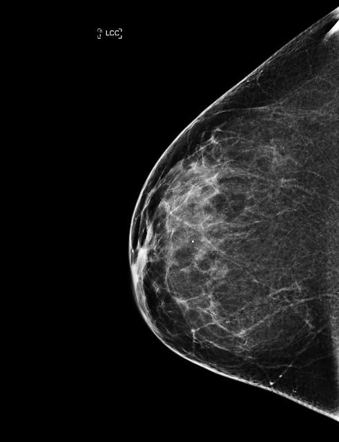 Mammogram - Normal