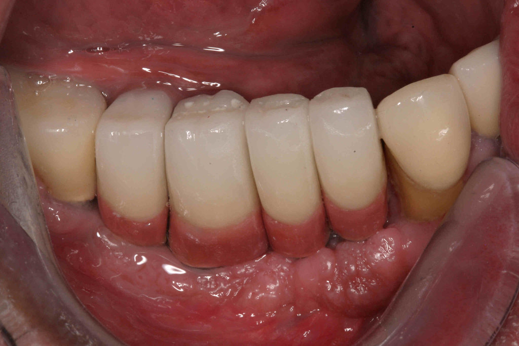 4-Implant Crowns