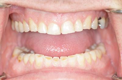 Before1 - Optimum Dentistry