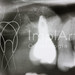 implante inserido em seio maxilar com enxerto - radiografia