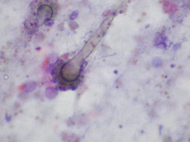 Aspergillus conidial head in a bronchial washing specimen