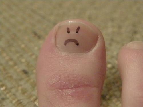 81/365: sad toe