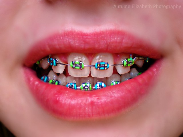 2020 Other Images Cute Braces Colors Combinations For Girls