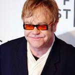 Elton John post hair transplant