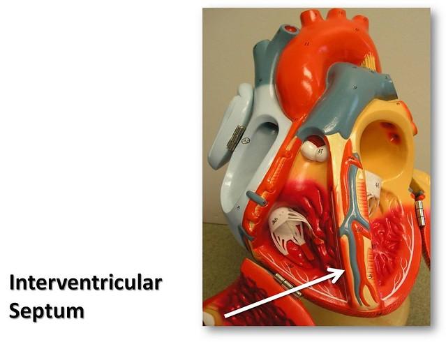 Interventricular septum - The Anatomy of the Heart Visual ...