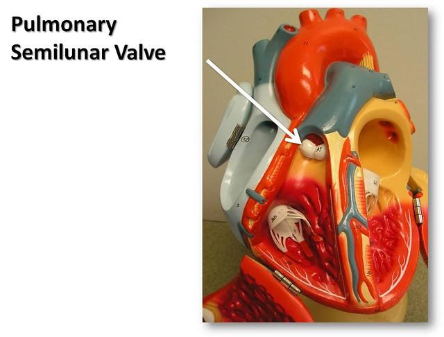 Pulmonary semilunar valve - The Anatomy of the Heart Visua ...