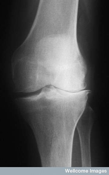 "Osteoarthritis with valgus deformity - aka ""knock-kneed"""