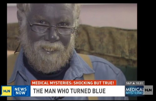 "Joel Schlessinger MD debunks the mysterious ""blue man"" disease"