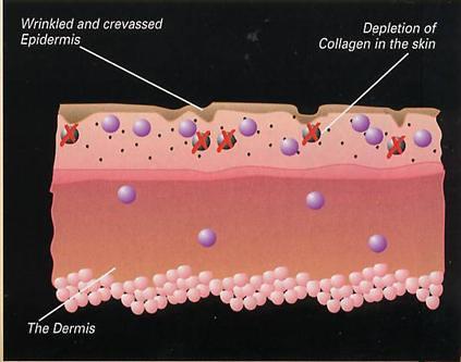 collagen skin 2