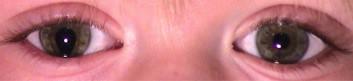 Coloboma de iris en el ojo derecho: se observa que falta el iris de la zona inferior lo que produce una deformación de la pupila que adopta forma de gota invertida