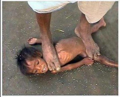 Still feeling sorry for yoursef and your life. This child's life will not get any better. Probably much worse.