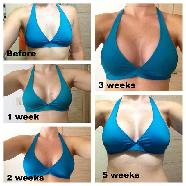 boob job before and after