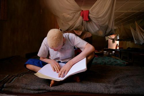 Un giovane albino legge in Braille