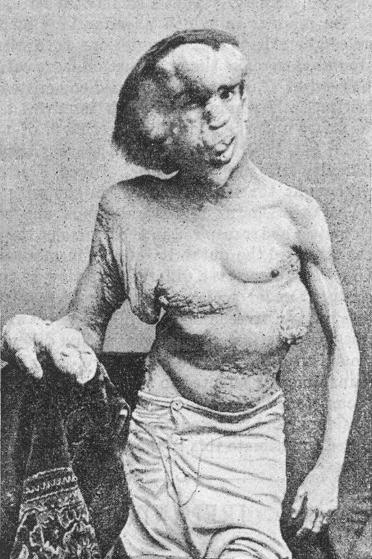 syfilis wiki british pornostjerne