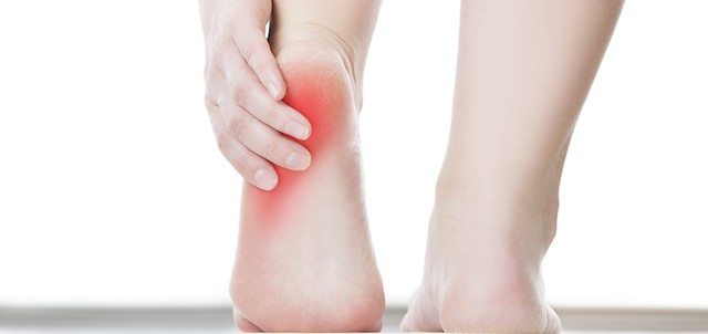 Top 5 Shoes for Heel Spurs and Plantar Fasciitis