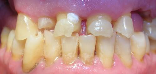 Desgaste dental severo