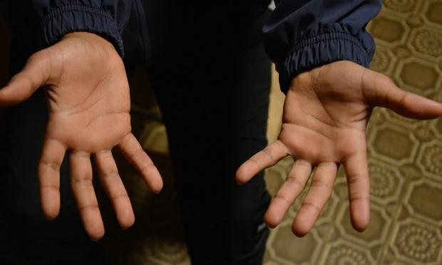 Hands | December day11