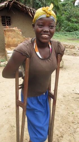 Alima upright on crutches