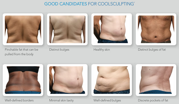 how much does a coolsculpting machine cost