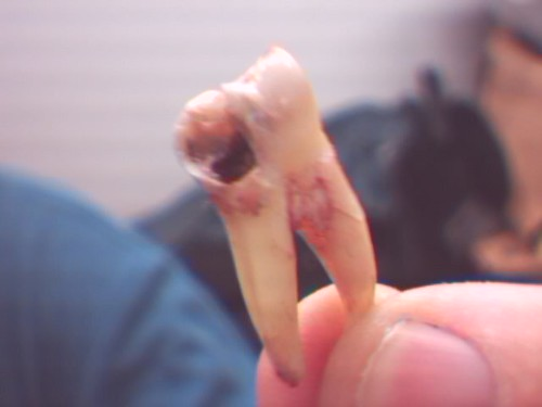 molar cavity