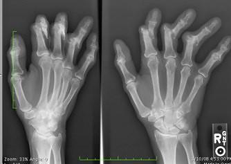 xray arthritis