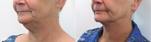 Dr. Darm, LipoLift Before and Afters - K.C. Slide4