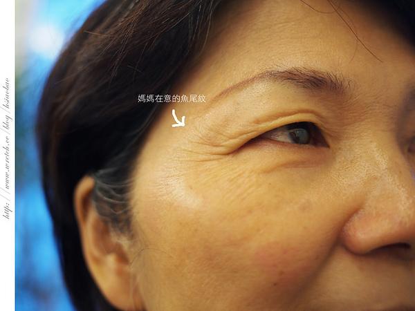 肉毒桿菌,肉毒桿菌副作用,肉毒桿菌價格,消除皺紋,魚尾紋,抬頭紋,皺紋