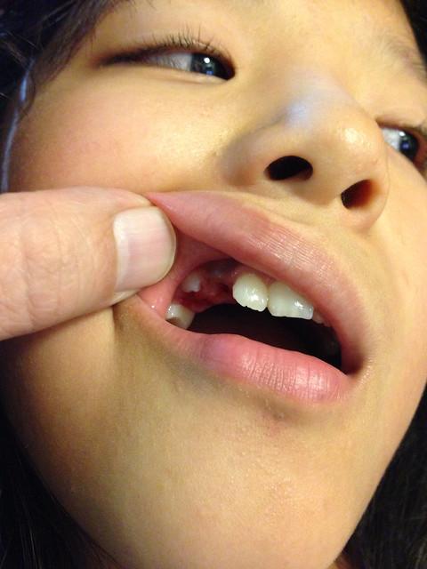 志穂の虫歯治療