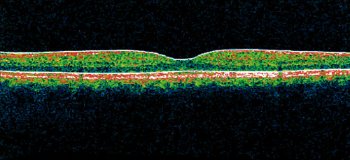 Optical coherence tomography 2
