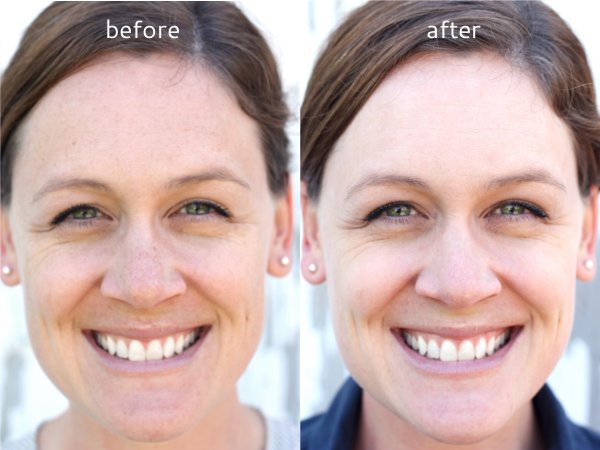 Before and After my Fotofacial at Utah Cosmetic Surgery