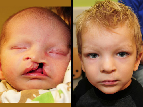 cleft lip and cleft palate essay People can born with various different types of anatomical defects, one that is in the top ten of newborn babies is cleft lip and palate also known as an.