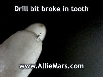 Root canal broken drill bit