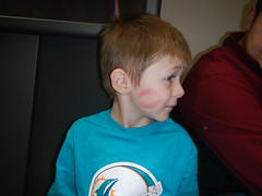 Jack's Kiss Face