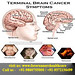 Brain--Cancer-Treatment-