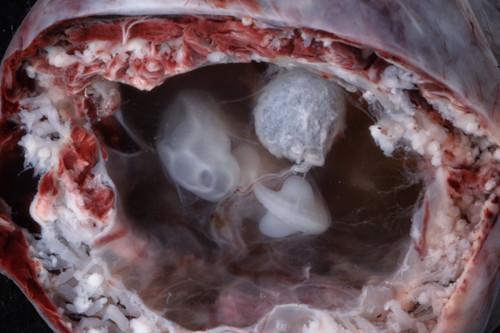 Embryo at 4 to 5 weeks