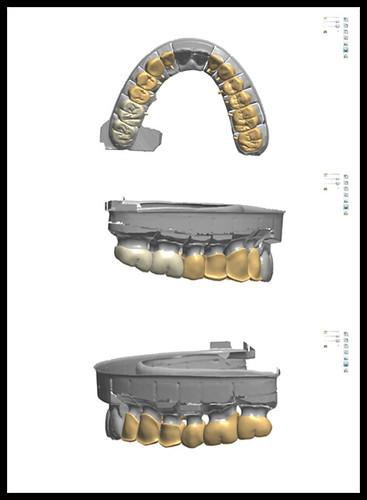 台中黃經理牙醫診所-陳柏均醫師-全口全瓷冠重建案例9