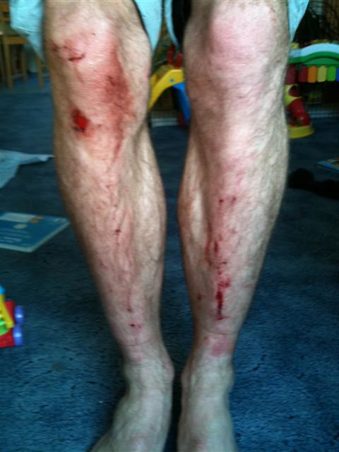 Battered Legs due to all the Ice