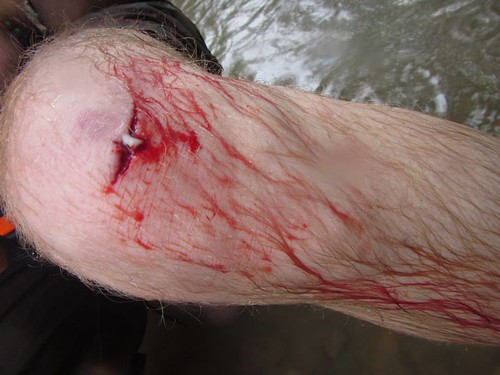 Ouch! Cut knee injury